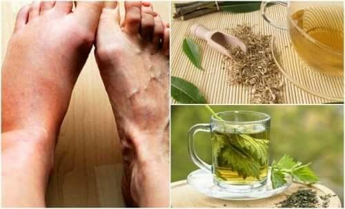 6 chás de ervas para diminuir o nível de ácido úrico no organismo