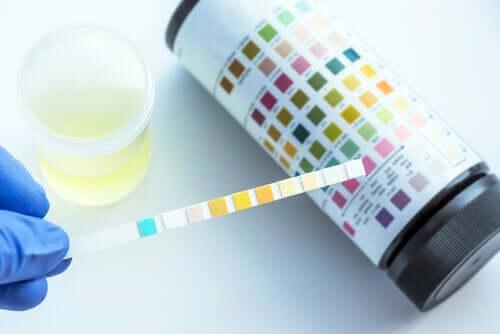 Exame de urina: tudo que você precisa saber