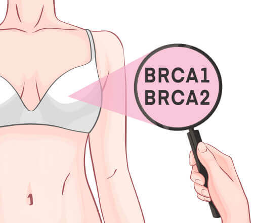 O papel dos genes BRCA-1 e 2 no câncer de mama