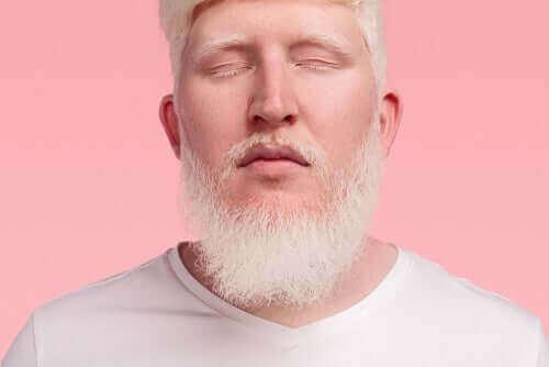 Homem albino de olhos fechados