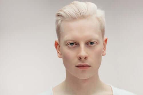 Tudo sobre o albinismo