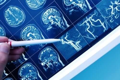 Demência vascular: tudo que você precisa saber