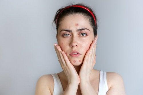 Jovem com acne durante o período menstrual