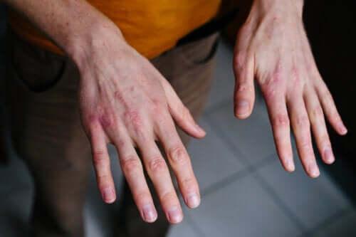 Mãos rachadas pelo frio: como tratá-las?