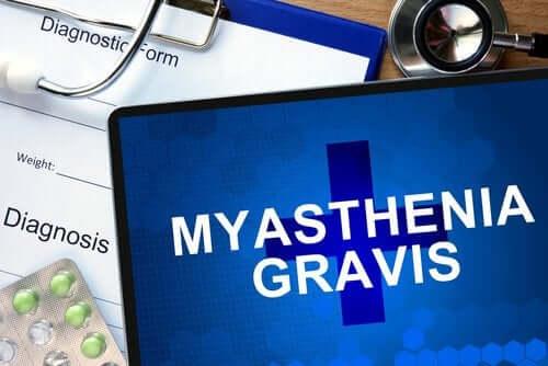 Miastenia gravis: tudo que você precisa saber sobre esta doença