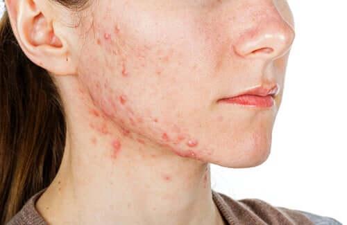 Isoface para tratar a acne grave