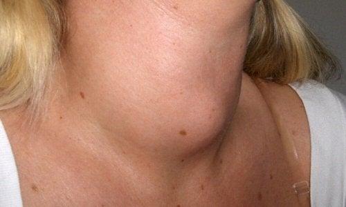 Mulher com pescoço inchado