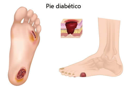 Como cuidar do pé diabético?