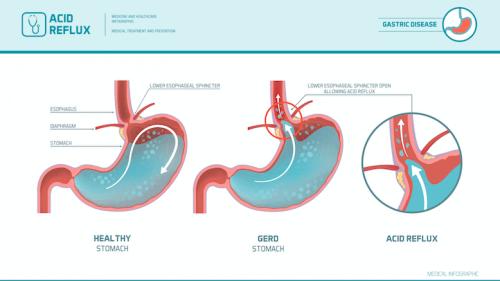 Dieta para o refluxo gastroesofágico