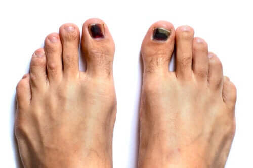 Unhas pretas nos pés: por que ocorrem e como tratá-las?