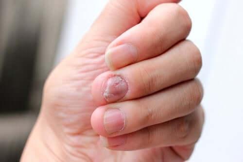 O que é a síndrome de Hallopeau?