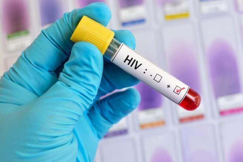 Teste de HIV positivo