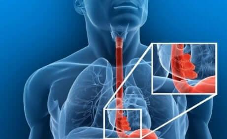 O que fazer diante de um corpo estranho esofágico?