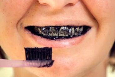 Os riscos do carvão ativado para a saúde bucal