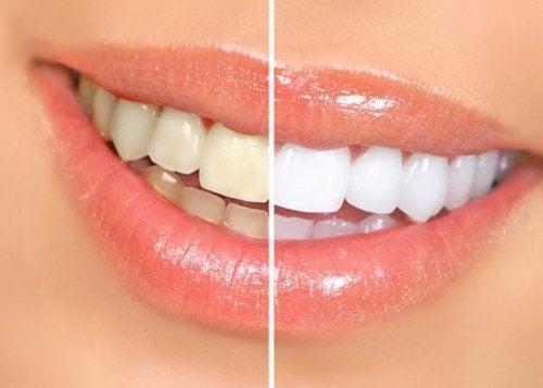 Dentes mais claros