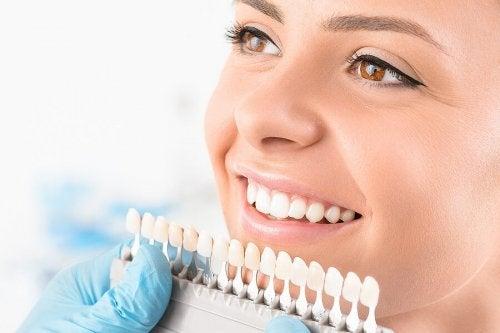 Clareamento dental: o que é e quais tipos existem?