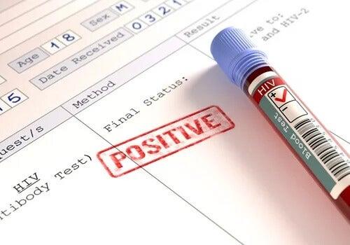 As pessoas com HIV estão mais expostas ao coronavírus?