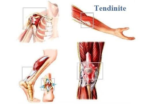 Tecido mole: locais comuns de tendinite