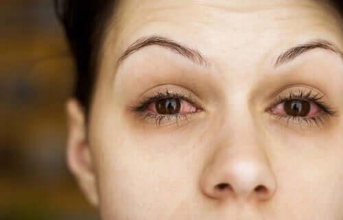 O olho seco pode causar muito desconforto