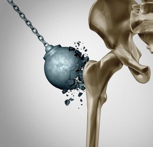 Como reduzir os danos da osteoporose após a menopausa