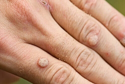 Tipos de verrugas e tratamentos