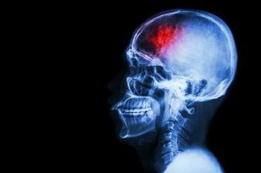 7 medidas preventivas contra o acidente vascular cerebral