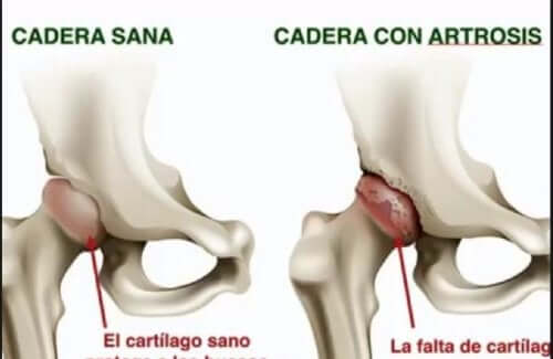 Osteoartrite do quadril