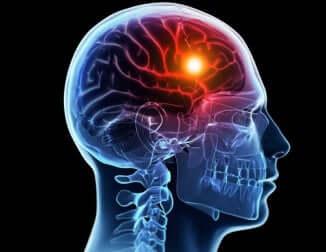 AVC no cérebro