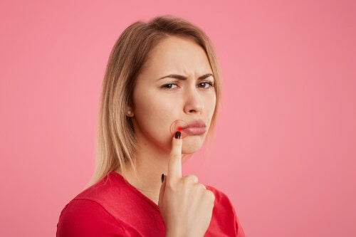 5 remédios para eliminar o herpes labial