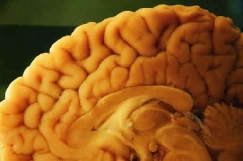 Remoção do cérebro para análise