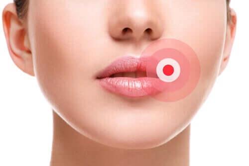 Como eliminar o herpes labial