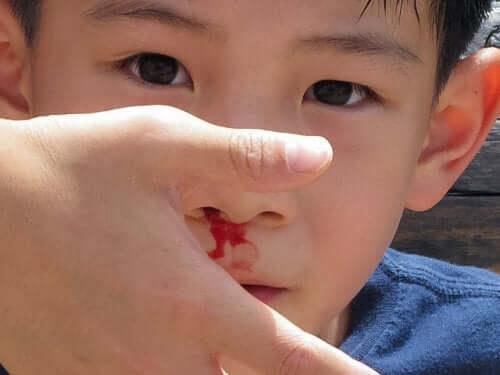 Menino com o nariz sangrando