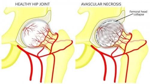 Necrose avascular da cabeça femoral