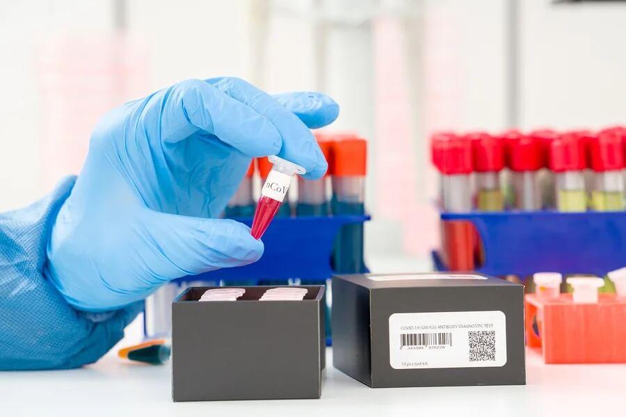 Detecção do coronavírus: o que é o método PCR?