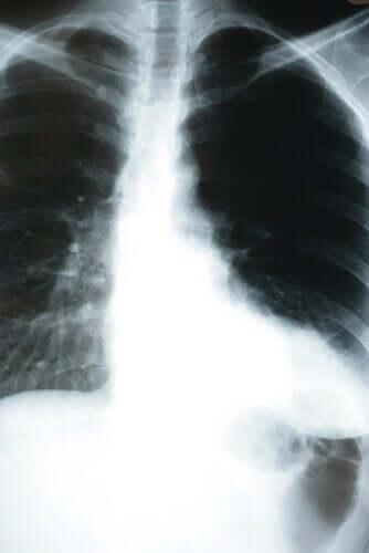 Como a pneumonia afeta o corpo?
