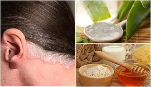 Remédios para a psoríase no couro cabeludo