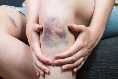 Quais são as causas da tromboflebite superficial?
