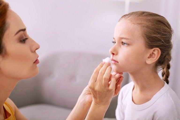Sangramentos nasais em crianças: como lidar com eles?
