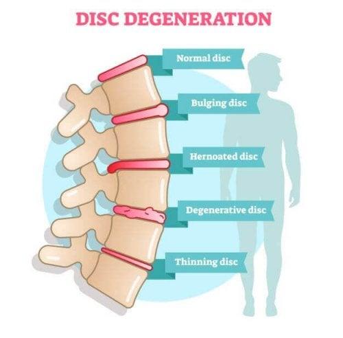 Sintomas da doença degenerativa do disco