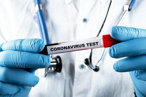 Teste para identificar coronavírus