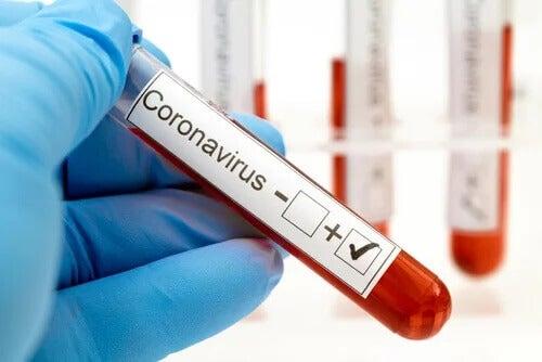 Teste positivo para o coronavírus