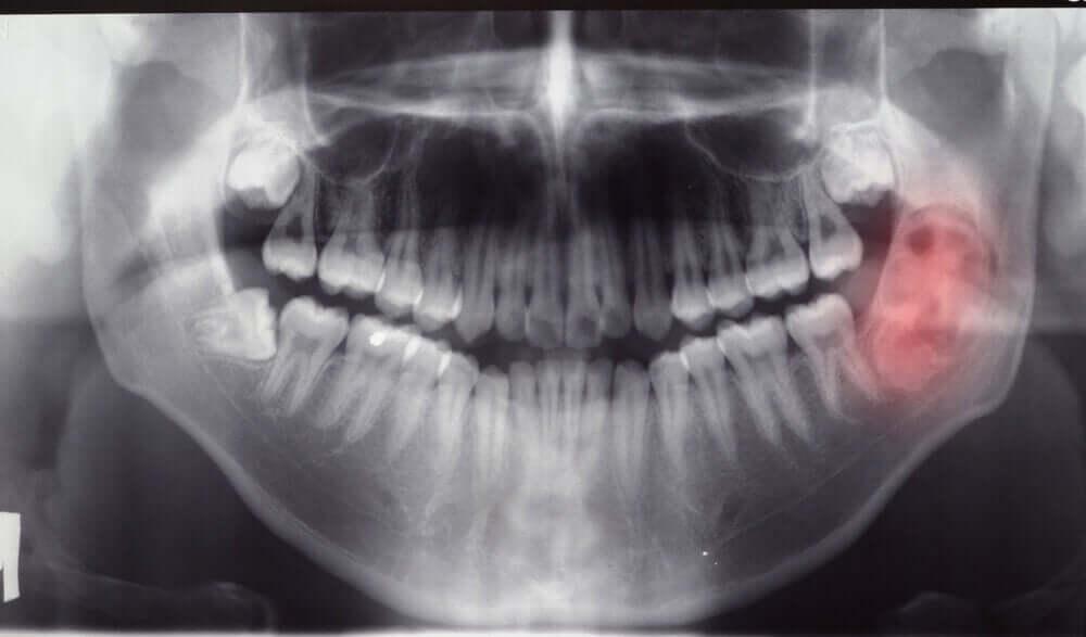 Diagnóstico de tumores e cistos mandibulares