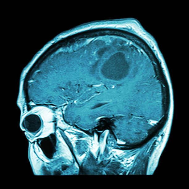 Será que teremos uma vacina contra o câncer no cérebro?