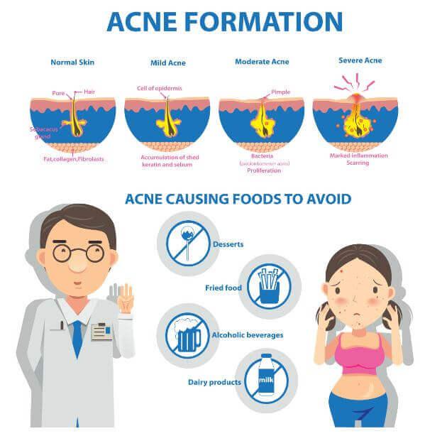 Formação da acne