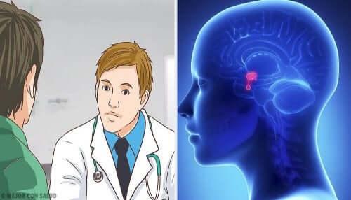 Tumores cerebrais