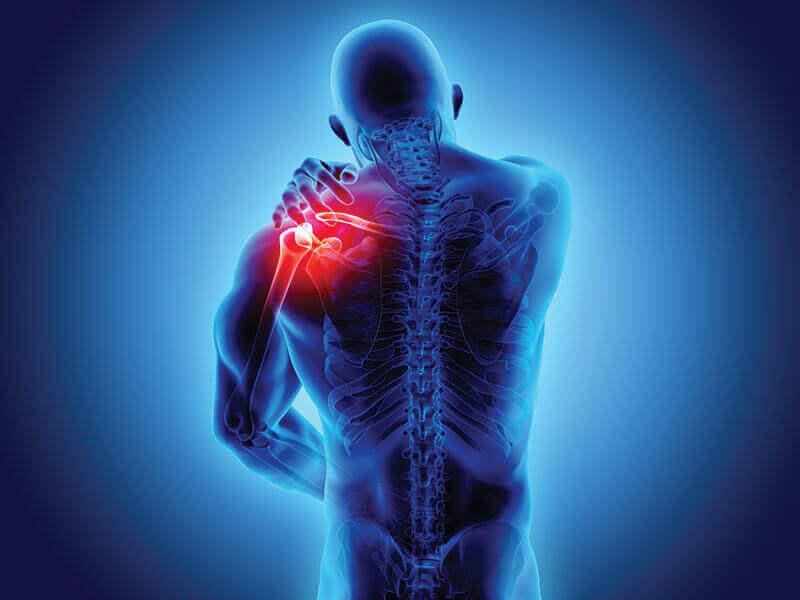 Espondiloartropatias: sintomas e diagnóstico