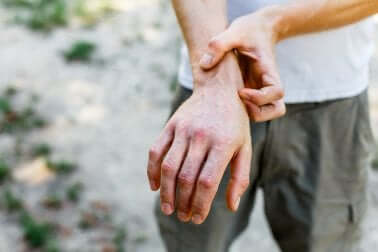 Homem com granuloma anular na mão