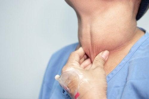 Tumor na tireoide