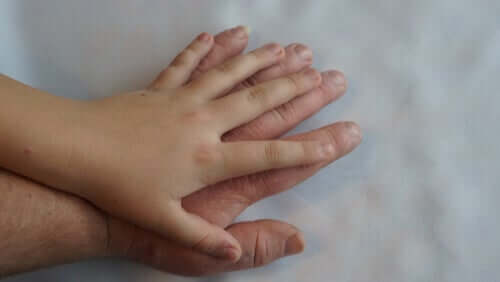 Acromegalia: o que é e quais são os seus sintomas?