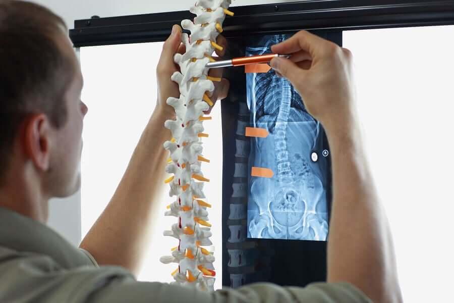 Metástase óssea: sintomas e tratamentos